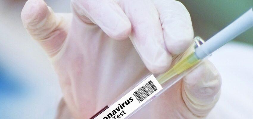 اختبار لقاحين جديدين لفيروس كورونا من جانب الخبراء فى كندا
