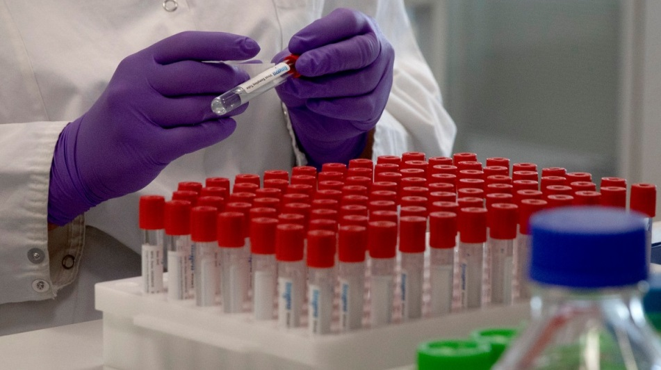 بكتيريا السالمونيلا تصل إلى 5 مقاطعات كندية و المصدر غير معروف حتى الآن