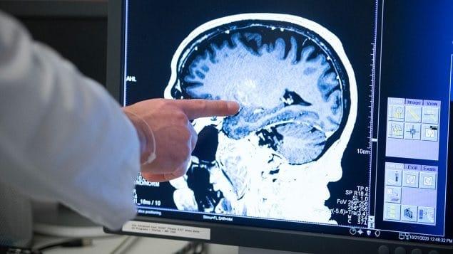 مرض باركنسون هو هدف البحث الكندى الرائد